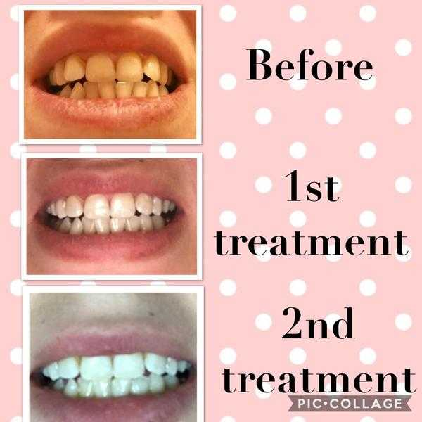 Advanced LED tooth whitening