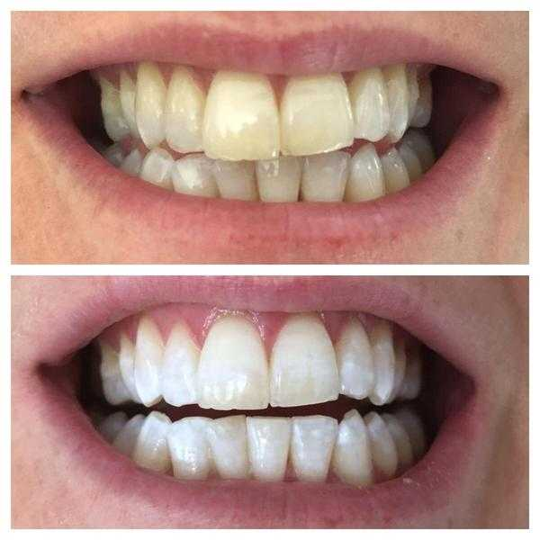 LASER TEETH WHITENING 100 FOR 2 PEOPLE